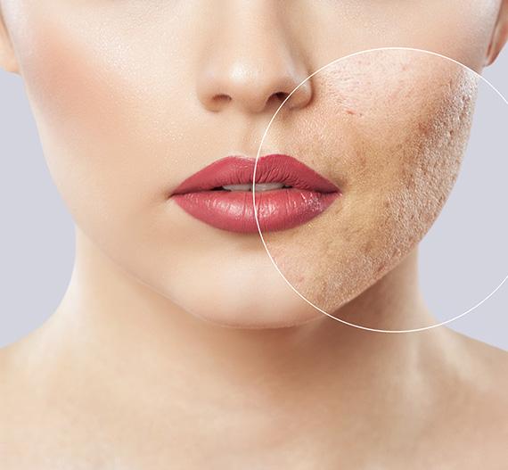 acne treatment sharjah