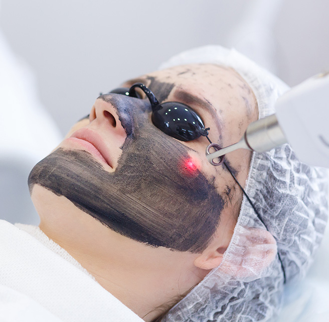 Carbon Laser Facial Sharjah