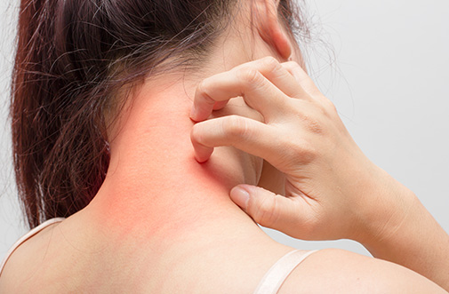 Eczema affected Women