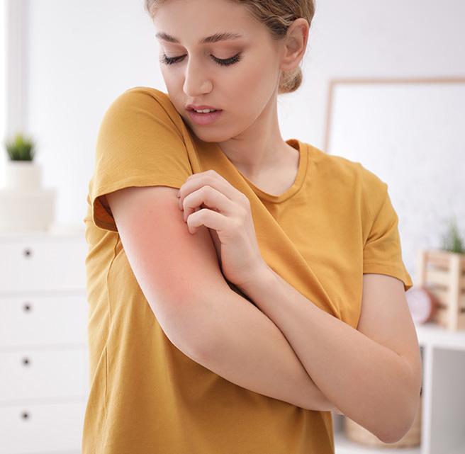 eczema treatment sharjah