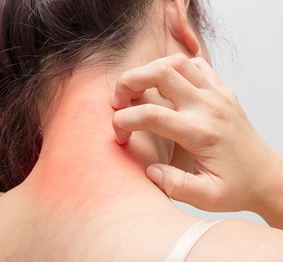 Women having Eczema