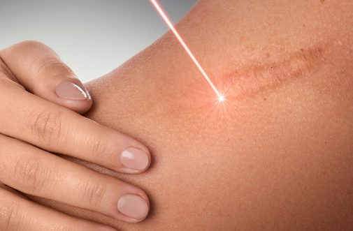 Keloid laser treatment in sharjah