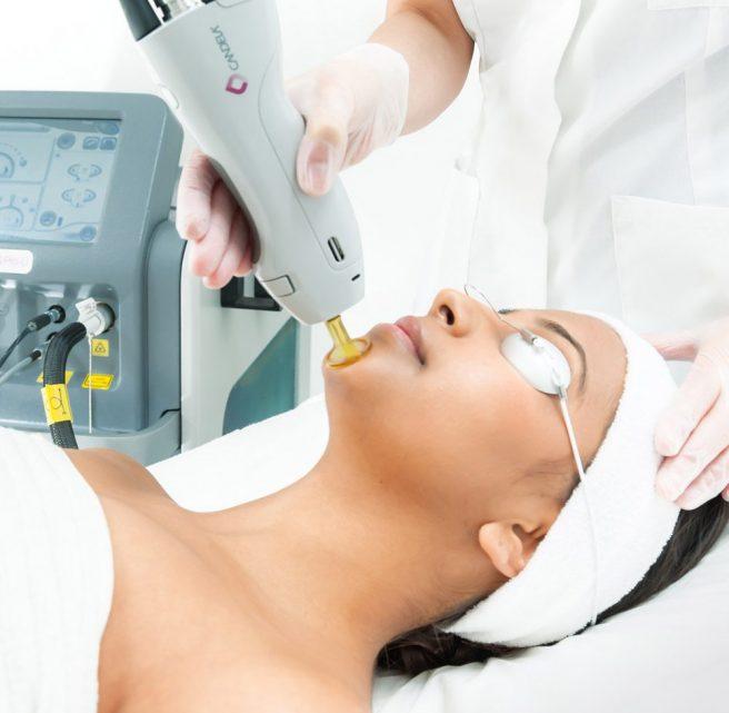 laser treatment for face (candela laser)